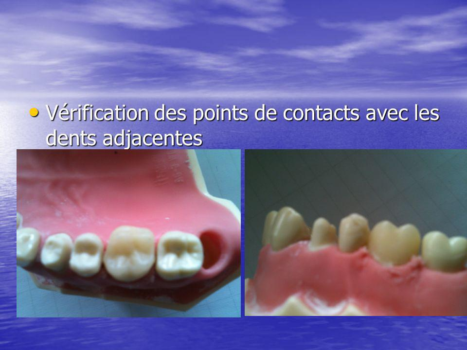 Vérification des points de contacts avec les dents adjacentes