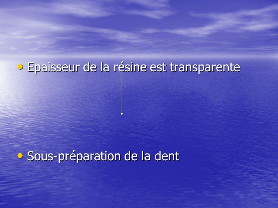 Epaisseur de la résine est transparente