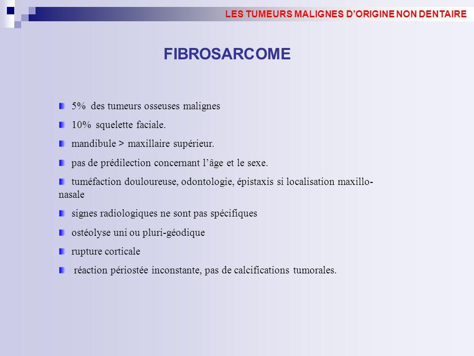 FIBROSARCOME 5% des tumeurs osseuses malignes 10% squelette faciale.