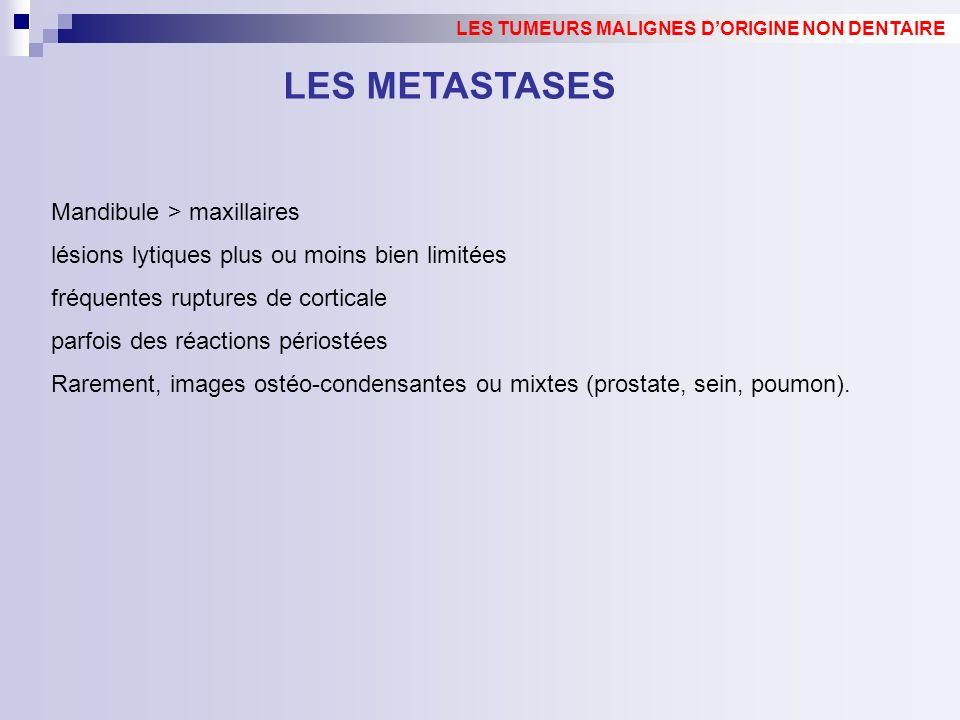 LES METASTASES Mandibule > maxillaires