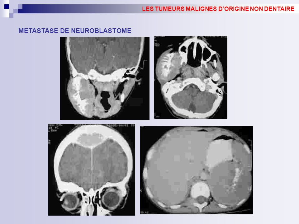 METASTASE DE NEUROBLASTOME