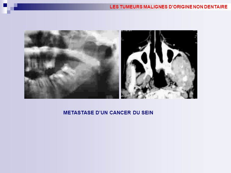 METASTASE D'UN CANCER DU SEIN