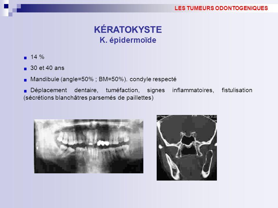 LES TUMEURS ODONTOGENIQUES KÉRATOKYSTE K. épidermoïde