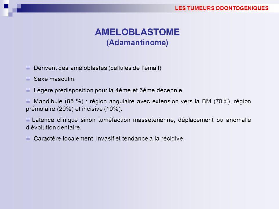 LES TUMEURS ODONTOGENIQUES AMELOBLASTOME (Adamantinome)