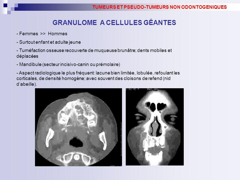 GRANULOME A CELLULES GÉANTES