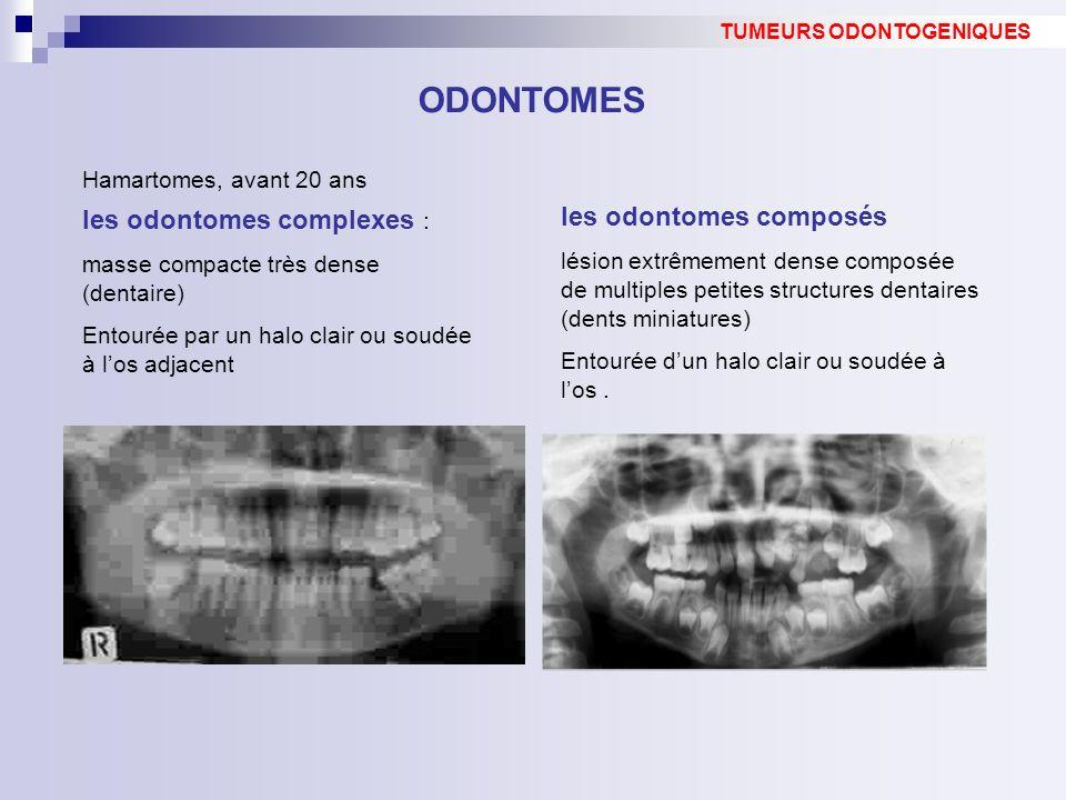 ODONTOMES les odontomes composés les odontomes complexes :