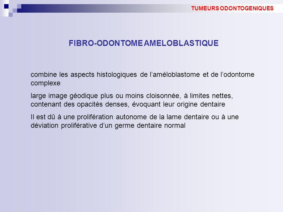 FIBRO-ODONTOME AMELOBLASTIQUE