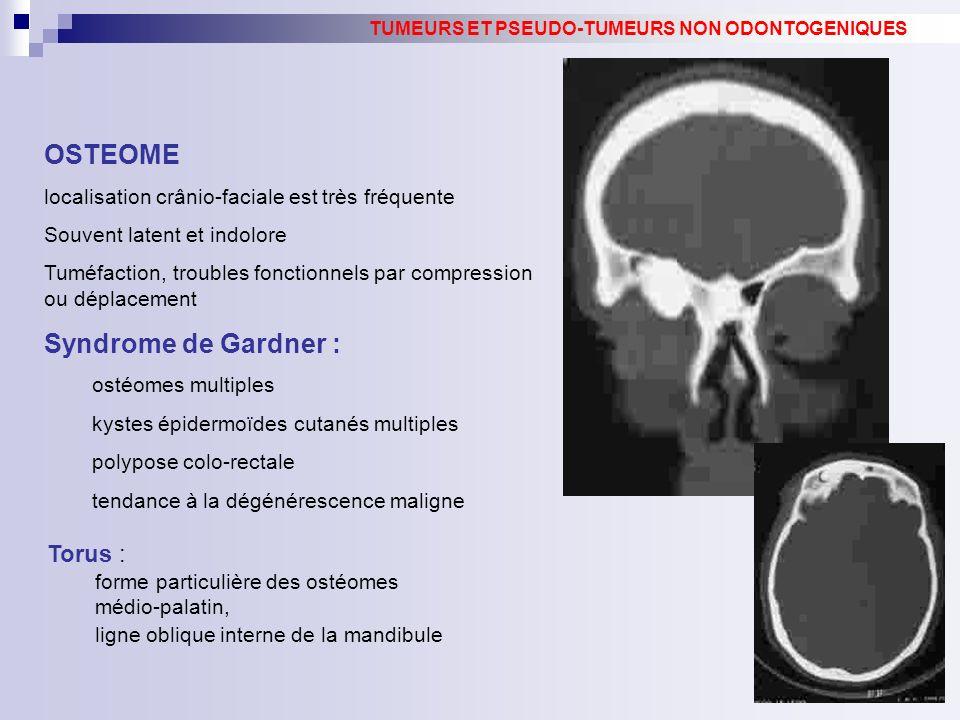 OSTEOME Syndrome de Gardner : Torus :