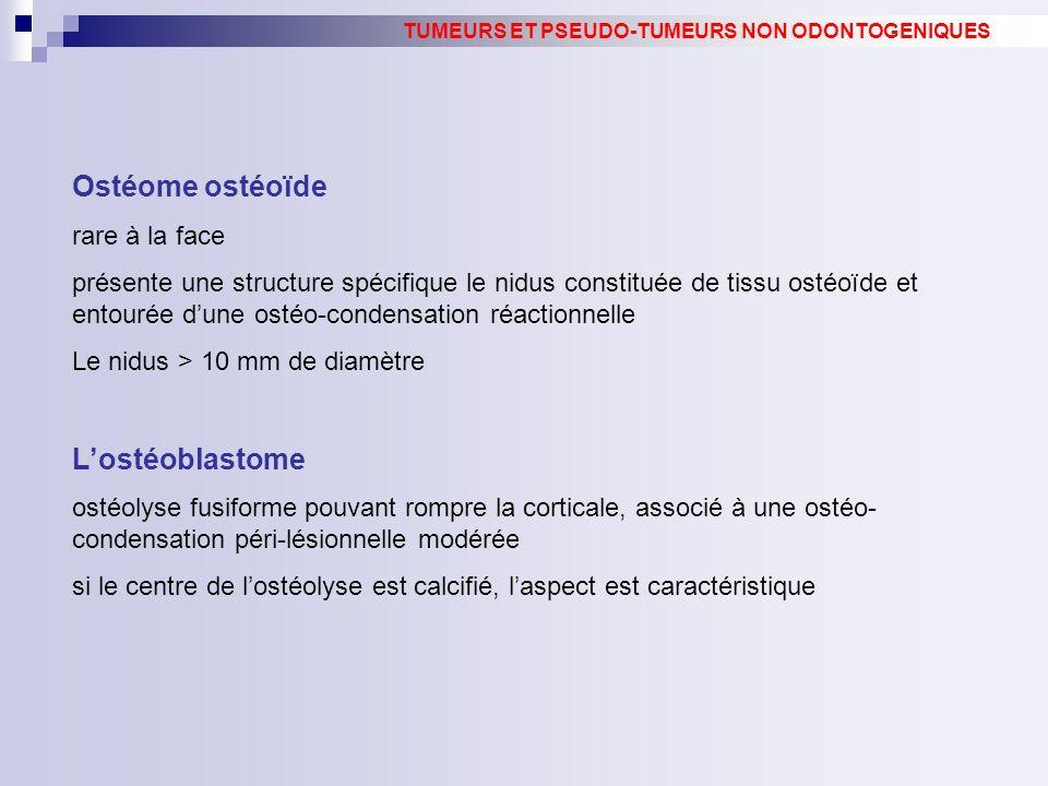 Ostéome ostéoïde L'ostéoblastome rare à la face