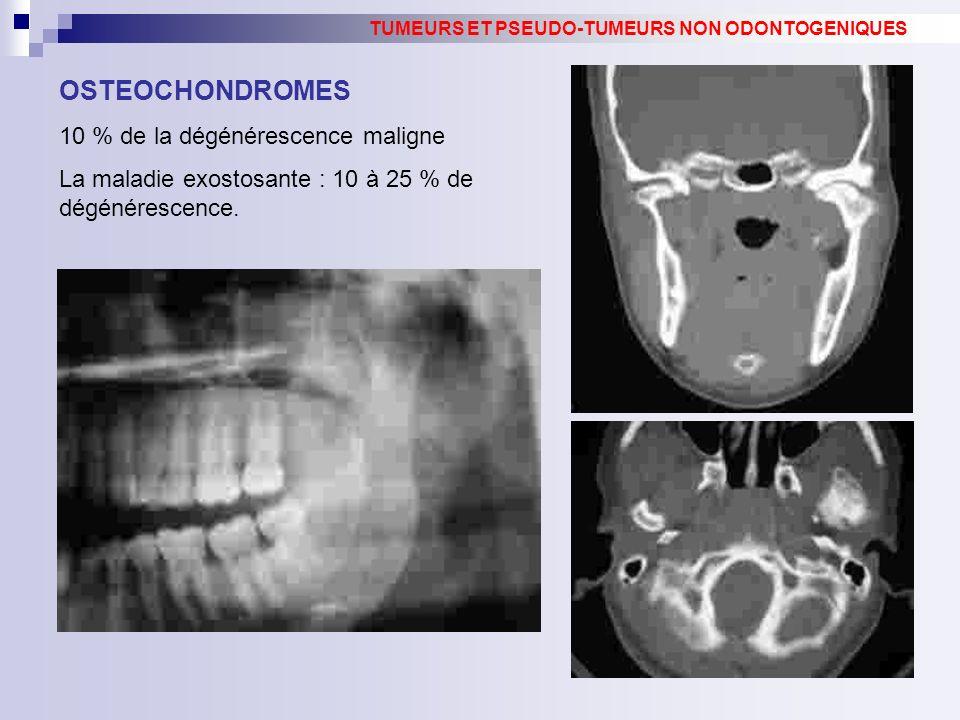 OSTEOCHONDROMES 10 % de la dégénérescence maligne