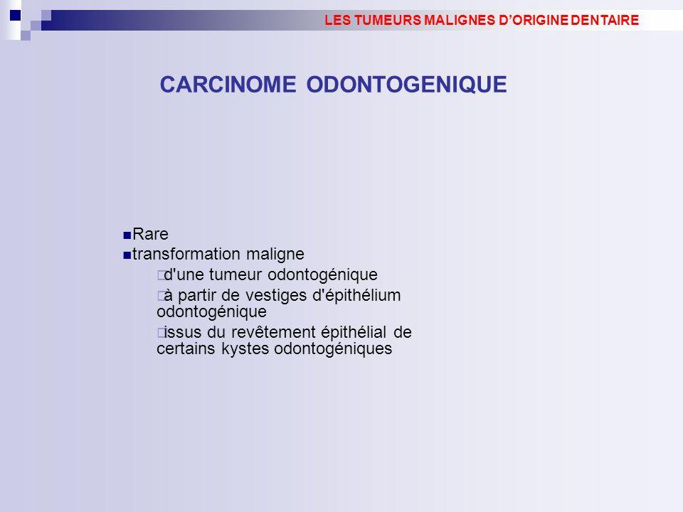 CARCINOME ODONTOGENIQUE