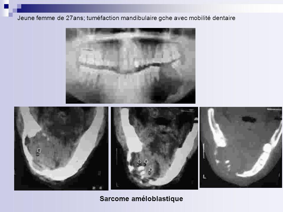 Sarcome améloblastique