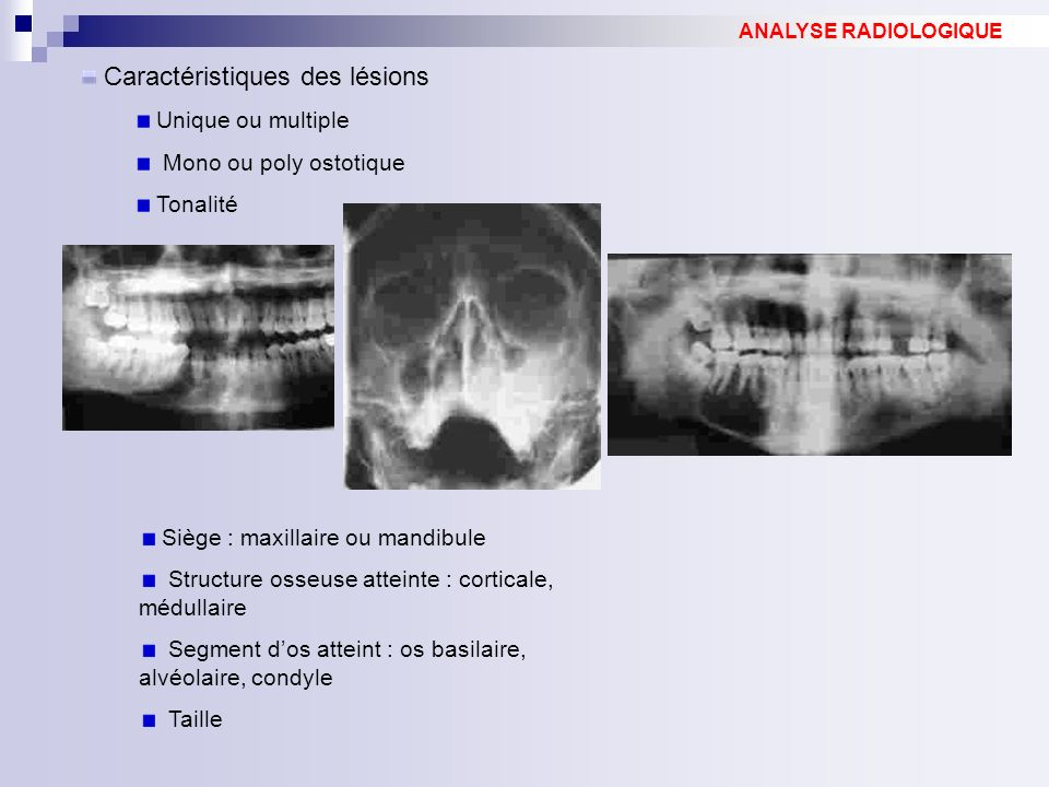 Caractéristiques des lésions Unique ou multiple Mono ou poly ostotique