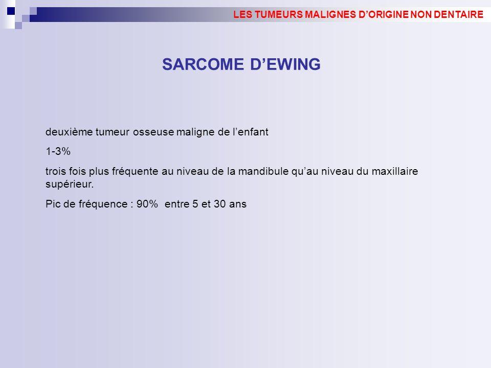 SARCOME D'EWING deuxième tumeur osseuse maligne de l'enfant 1-3%