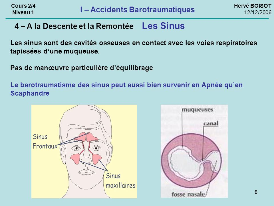 I – Accidents Barotraumatiques