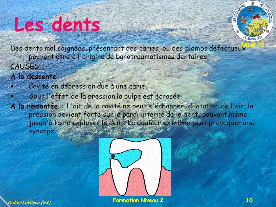 Les dents Des dents mal soignées, présentant des caries, ou des plombs défectueux peuvent être à l origine de barotraumatismes dentaires.