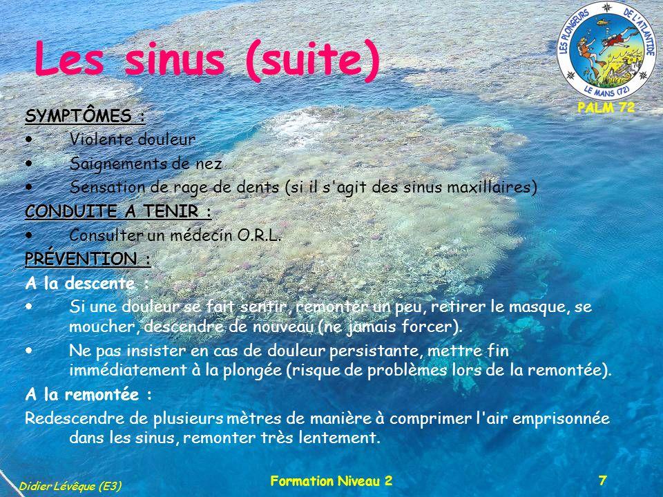 Les sinus (suite) SYMPTÔMES : Violente douleur Saignements de nez