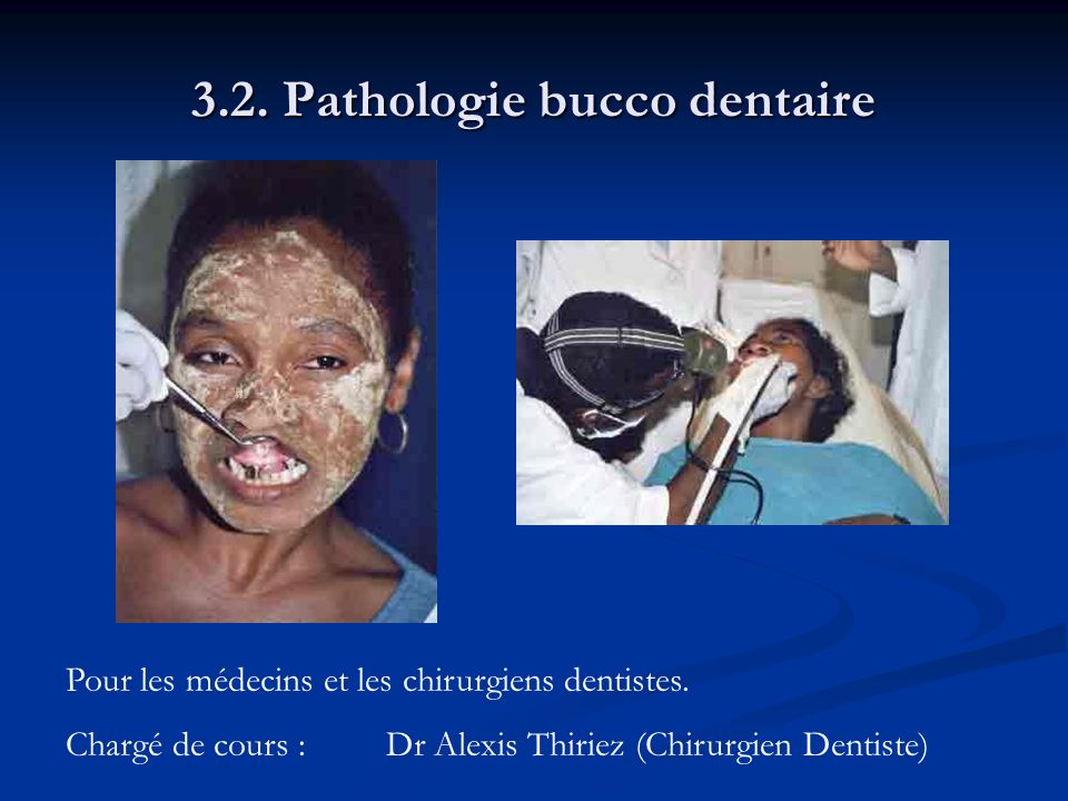 3.2. Pathologie bucco dentaire