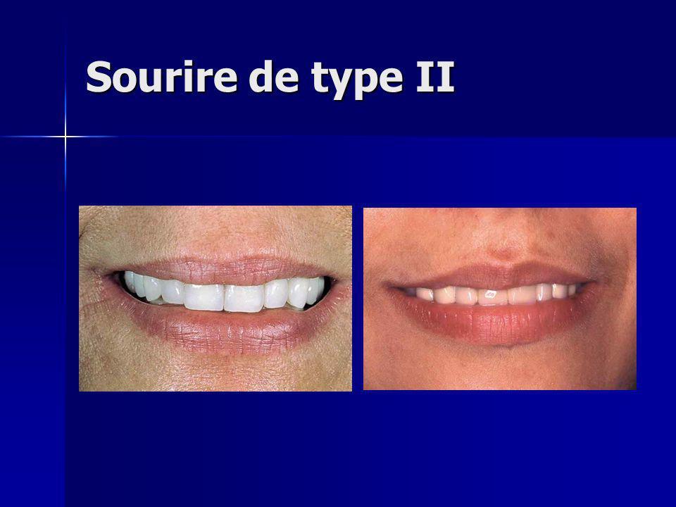 Sourire de type II - … le sourire de type II ne peut disposer d'une aussi grande variabilité de courbe.
