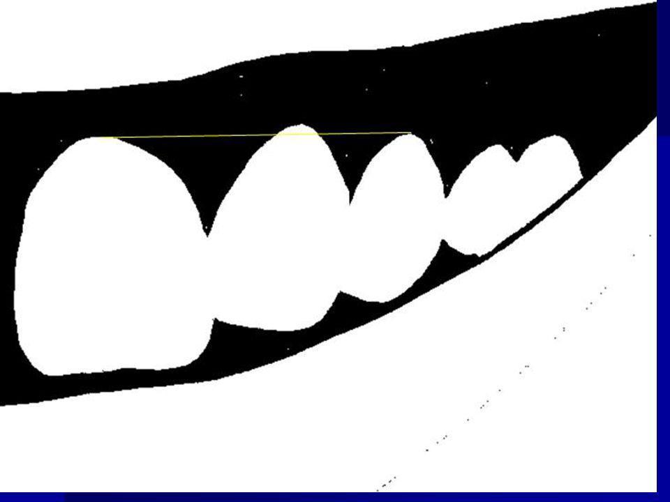 - si le feston gingival des incisives latérales est apical à celui des incisives centrales et canines …