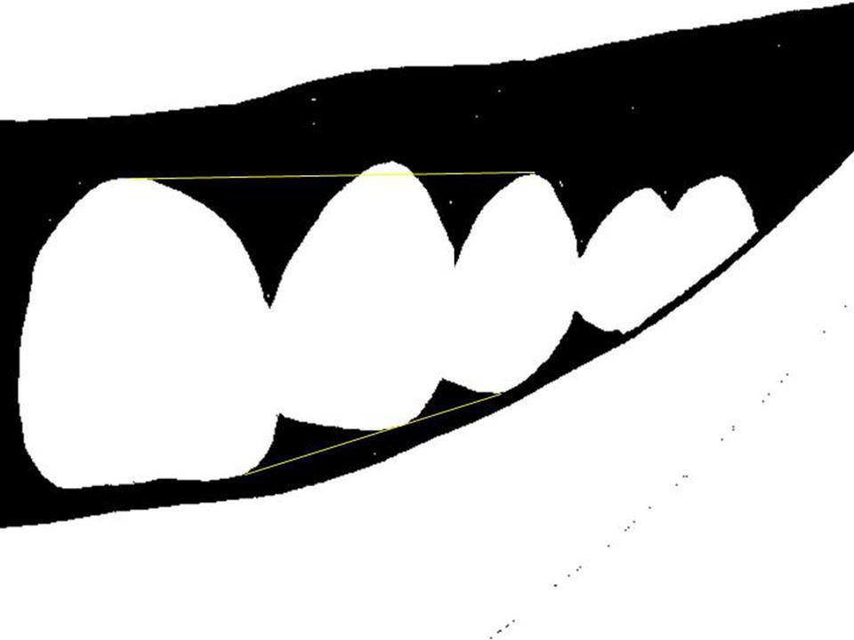 … le résultat est harmonieux si les incisives latérales dont le feston est plus apical présentent un bord libre plus court.