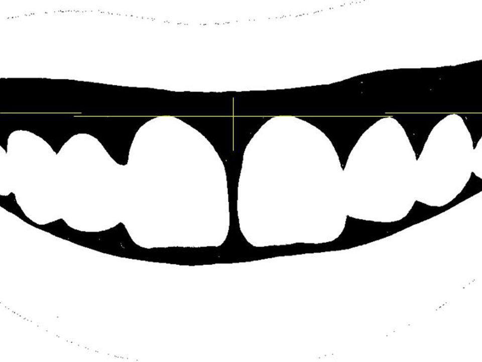 - important: en présence d'un sourire gingival, il est plus esthétique que la gencive marginale des quatre incisives soit au même niveau.