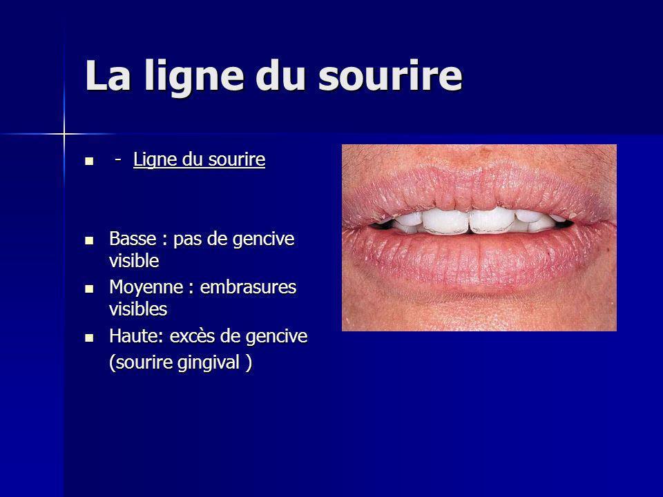 La ligne du sourire - Ligne du sourire Basse : pas de gencive visible