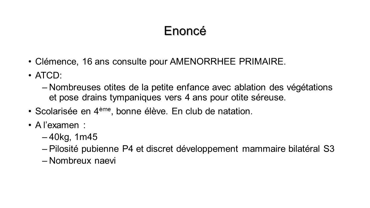Enoncé Clémence, 16 ans consulte pour AMENORRHEE PRIMAIRE. ATCD: