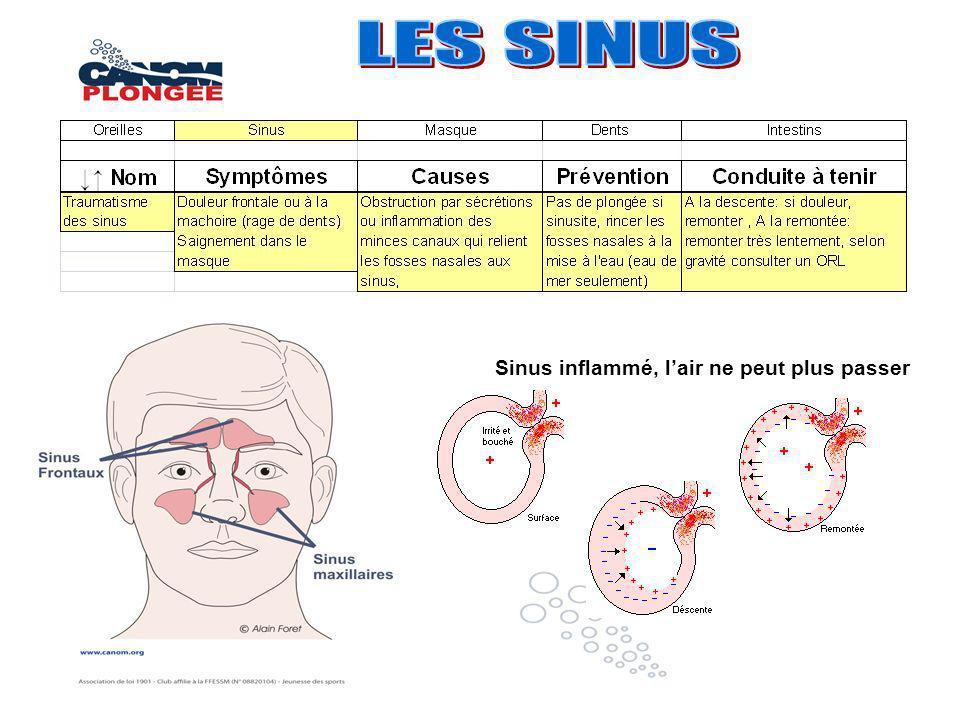 LES SINUS Sinus inflammé, l'air ne peut plus passer