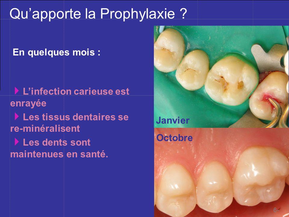 Qu'apporte la Prophylaxie