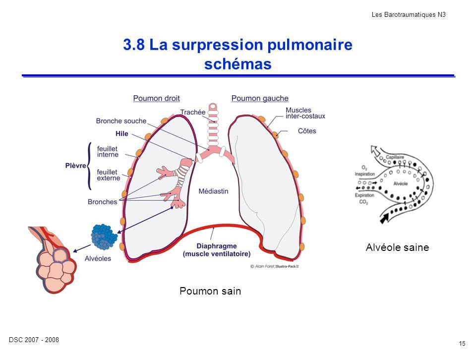 3.8 La surpression pulmonaire schémas