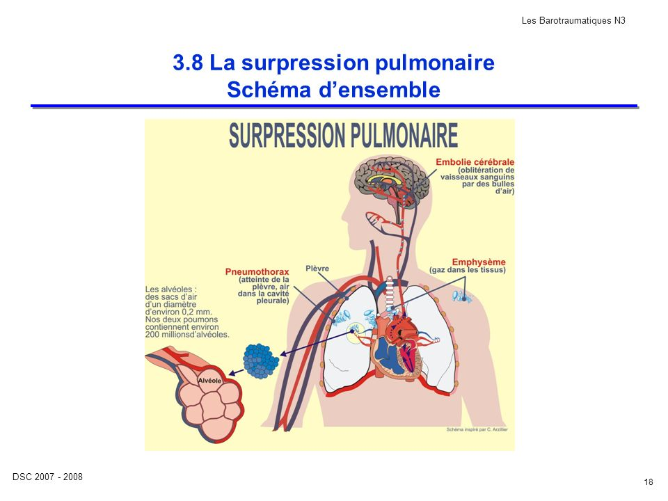 3.8 La surpression pulmonaire Schéma d'ensemble