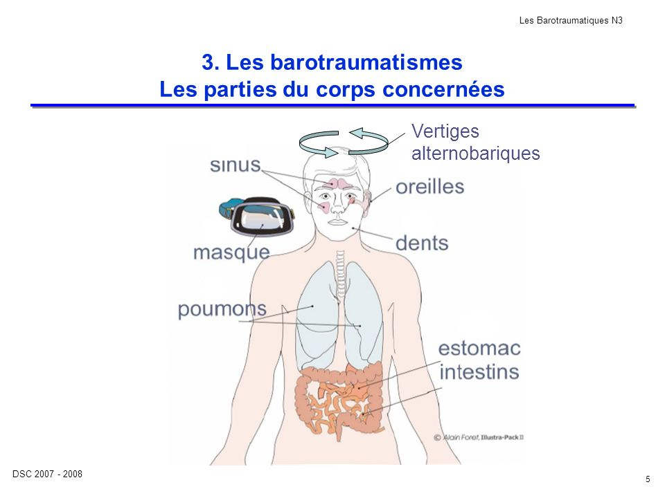 3. Les barotraumatismes Les parties du corps concernées