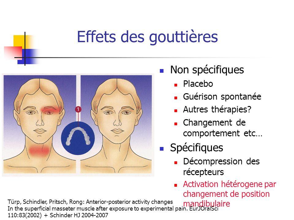 Effets des gouttières Non spécifiques Spécifiques Placebo