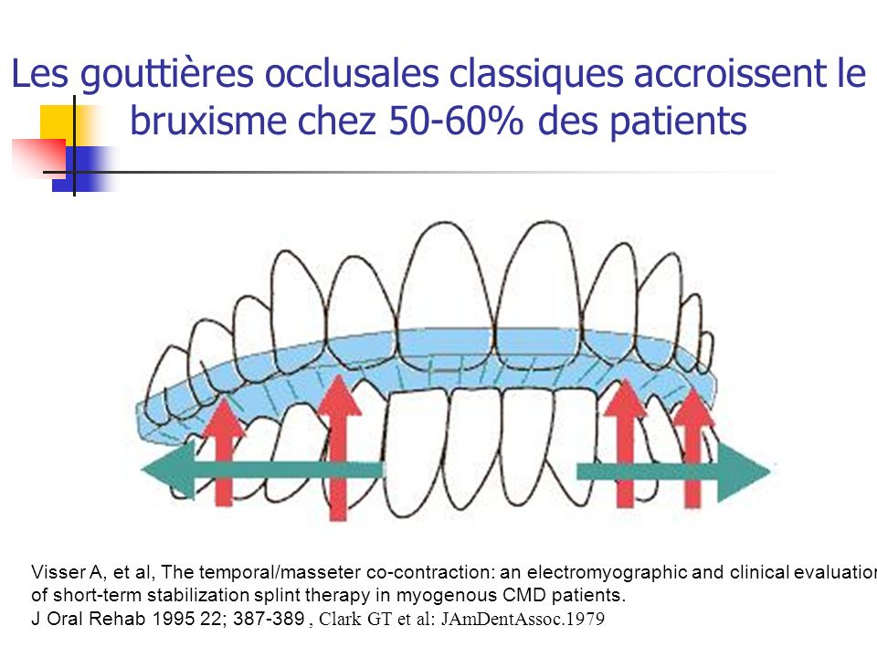 Les gouttières occlusales classiques accroissent le bruxisme chez 50-60% des patients