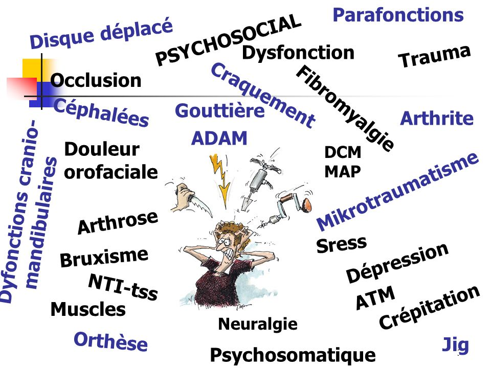 Gouttière ADAM Douleur orofaciale