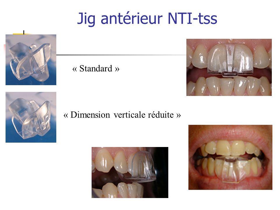 Jig antérieur NTI-tss « Standard » « Dimension verticale réduite »