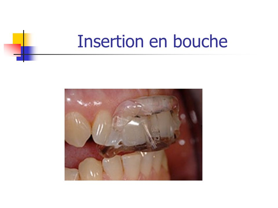 Insertion en bouche