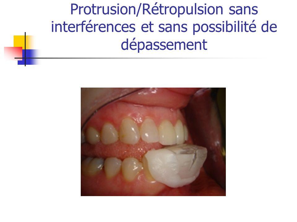 Protrusion/Rétropulsion sans interférences et sans possibilité de dépassement