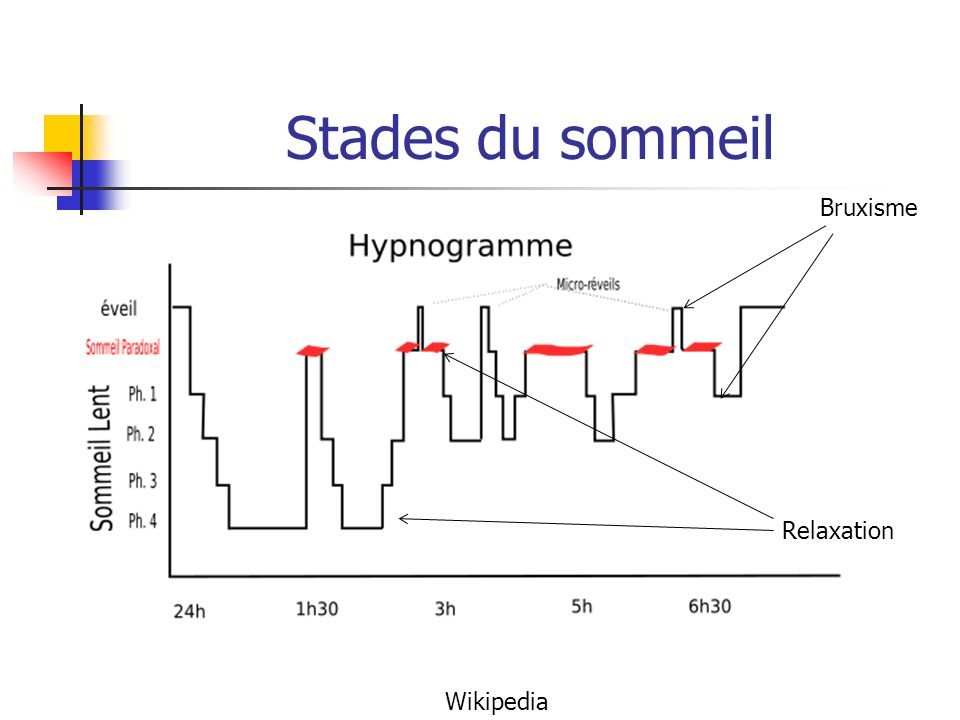 Stades du sommeil Bruxisme Relaxation Wikipedia