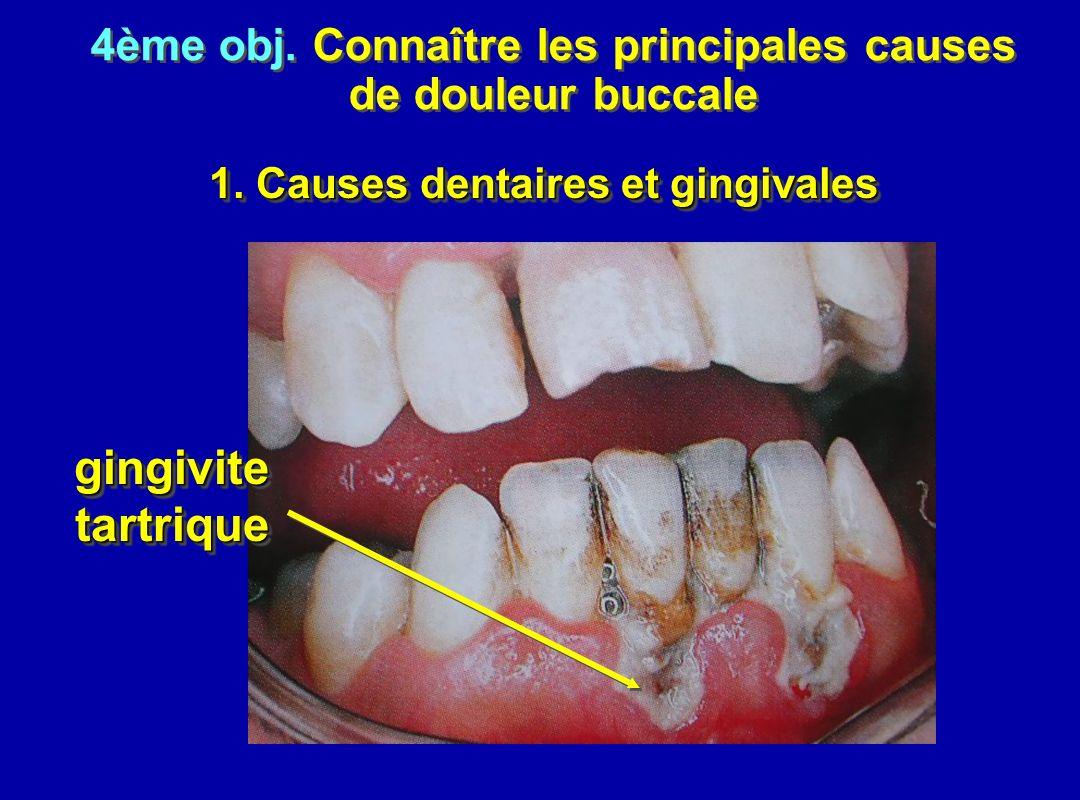 gingivite tartrique 4ème obj. Connaître les principales causes
