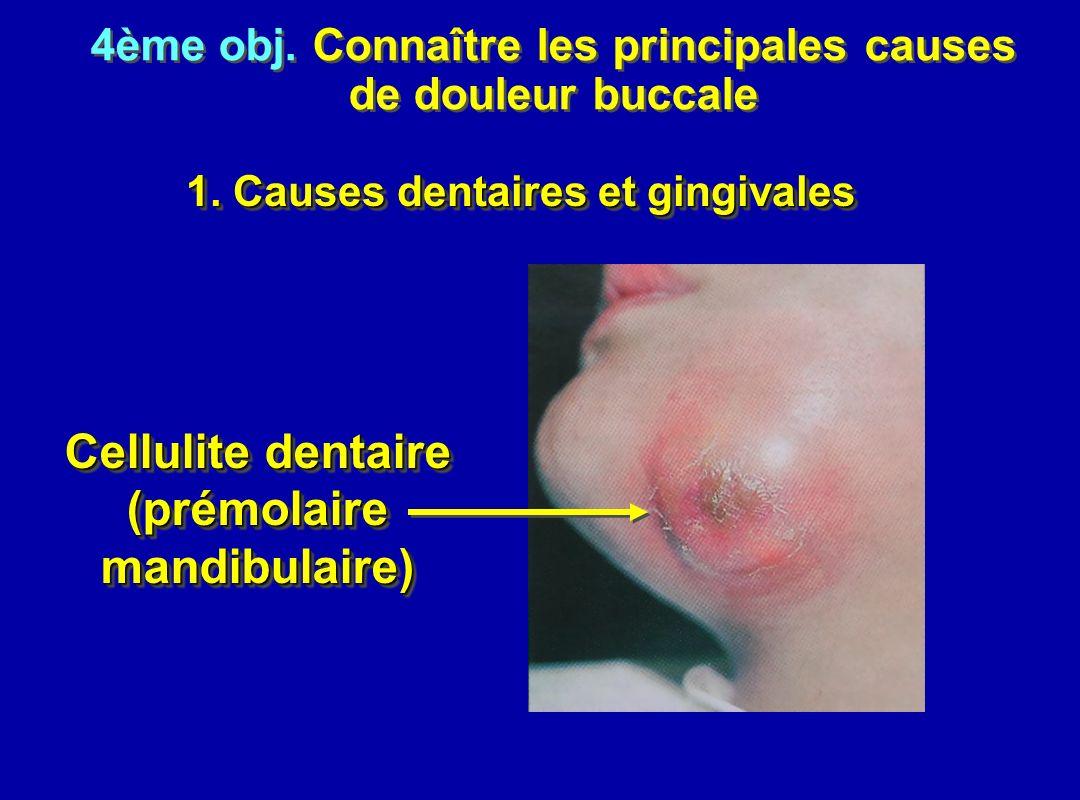 Cellulite dentaire (prémolaire mandibulaire)