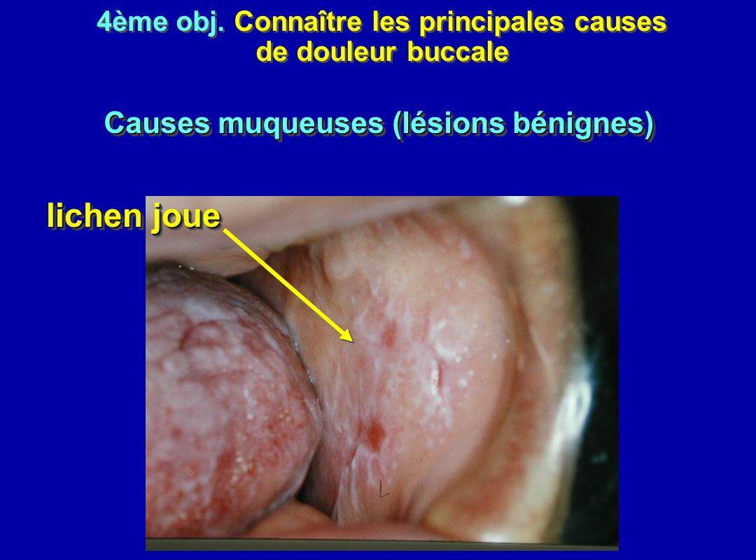 lichen joue Causes muqueuses (lésions bénignes)