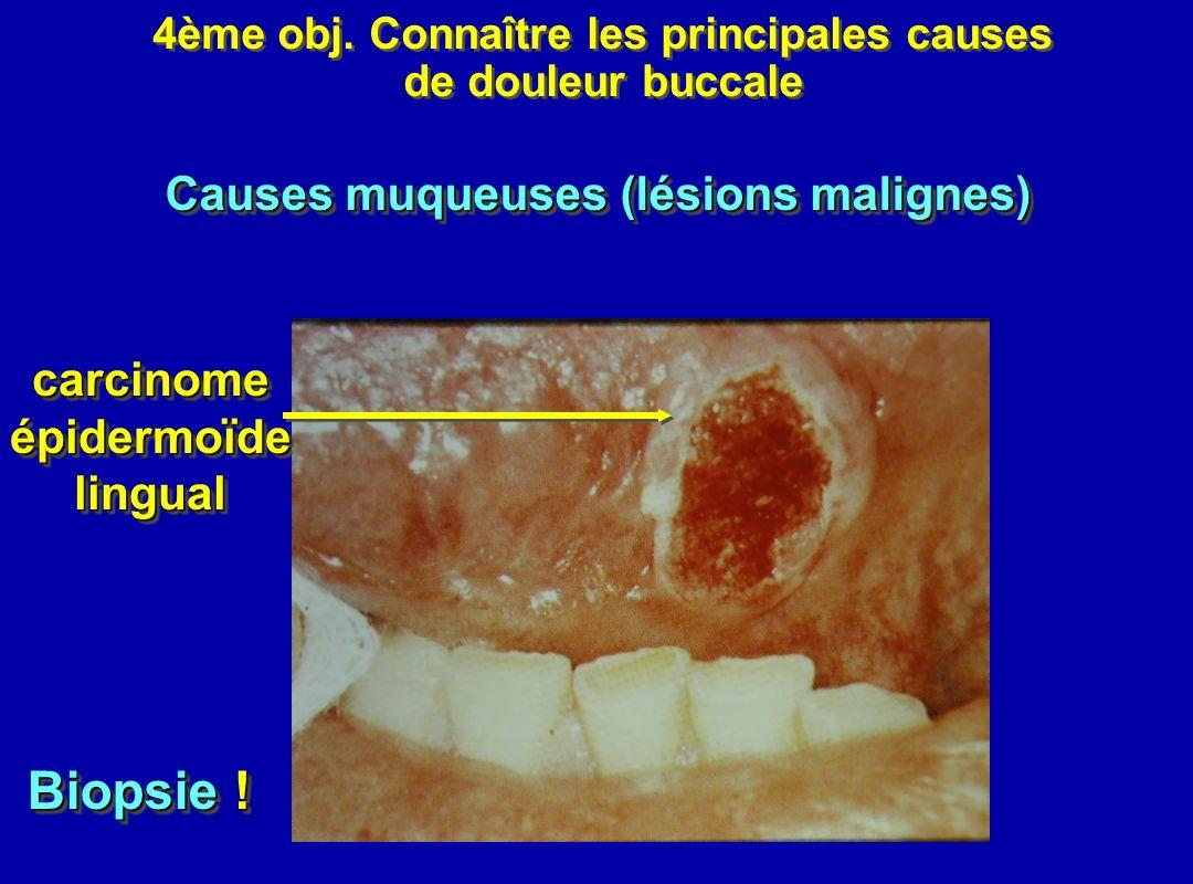 Biopsie ! Causes muqueuses (lésions malignes) carcinome épidermoïde