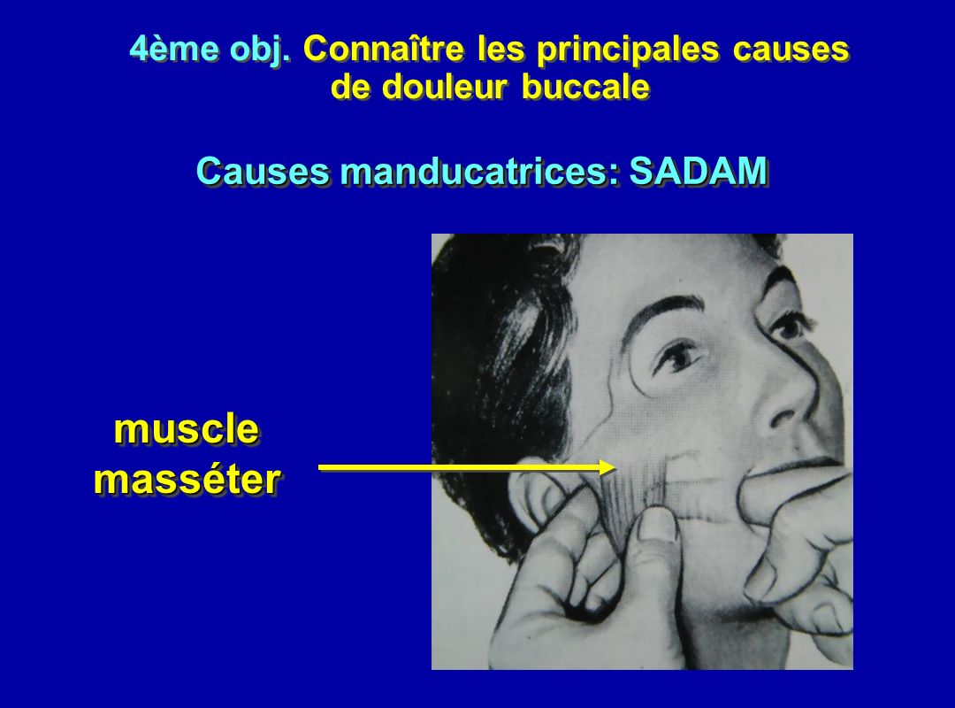 4ème obj. Connaître les principales causes Causes manducatrices: SADAM