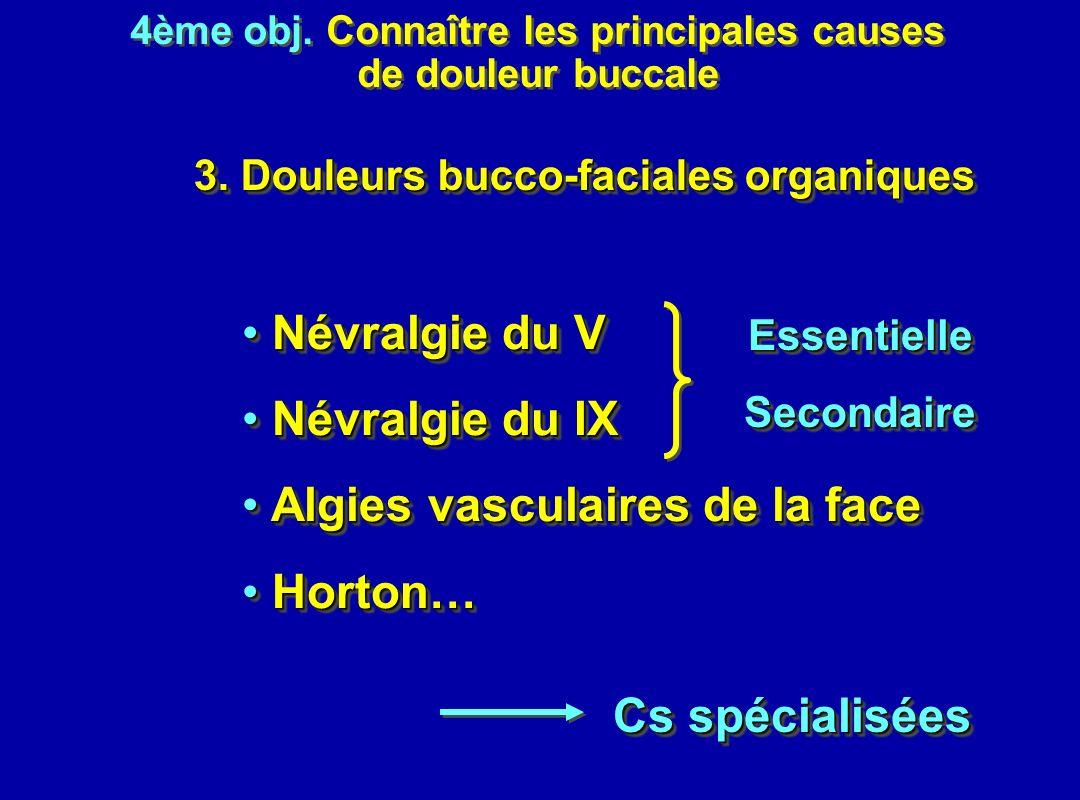 Algies vasculaires de la face Horton…