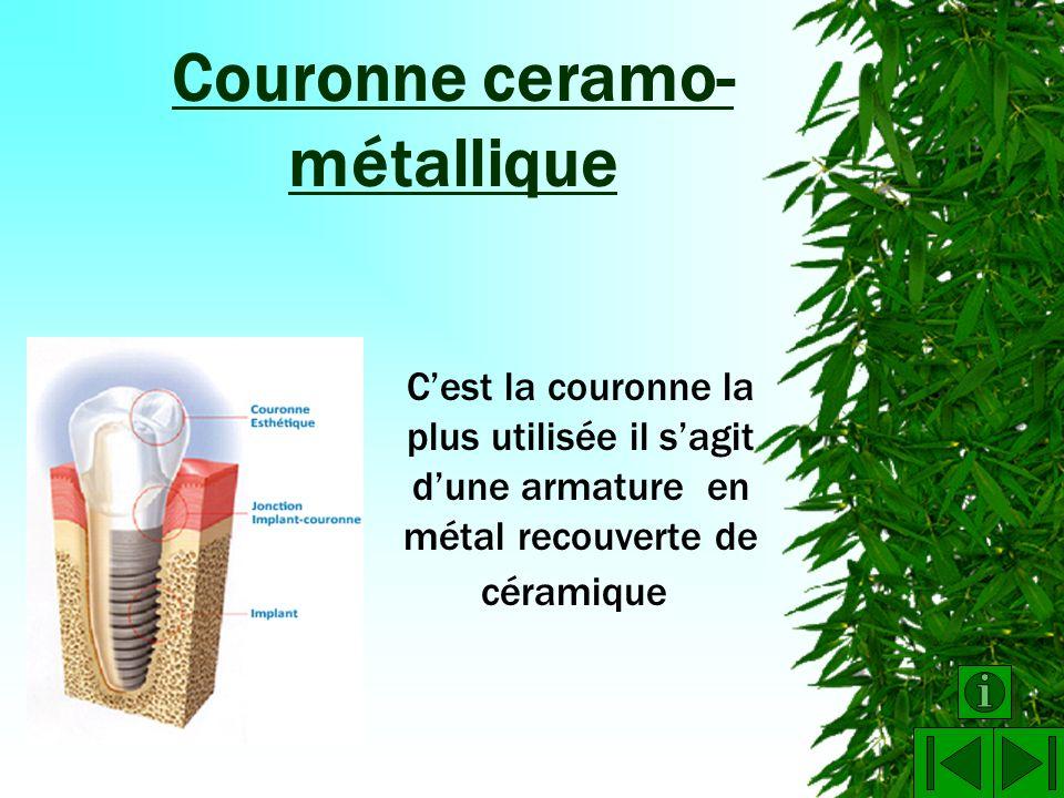 Couronne ceramo-métallique