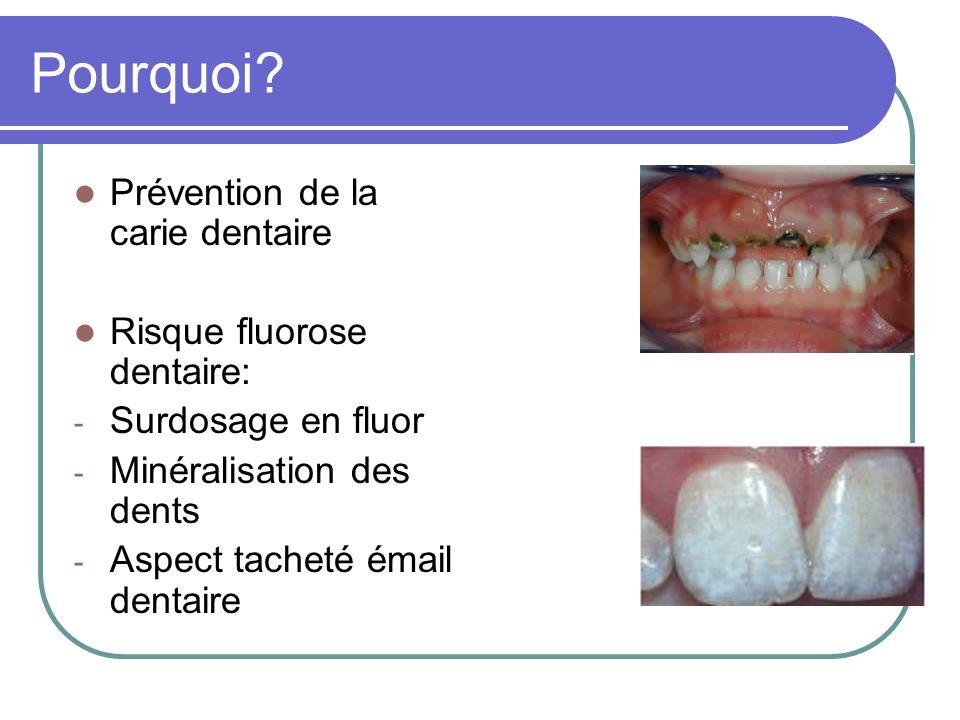 Pourquoi Prévention de la carie dentaire Risque fluorose dentaire: