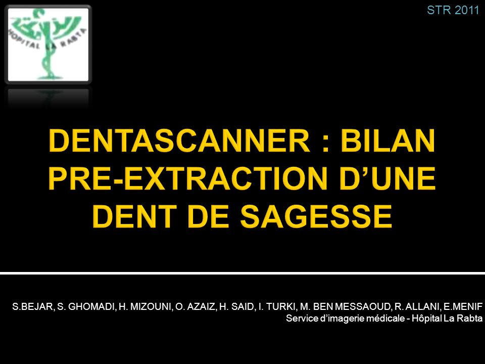 DENTASCANNER : BILAN PRE-EXTRACTION D'UNE DENT DE SAGESSE