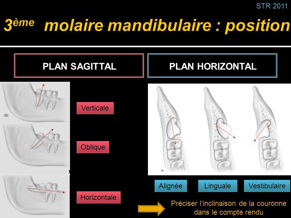 3ème molaire mandibulaire : position